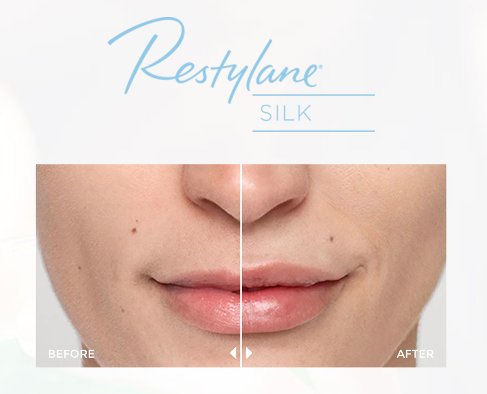 restylane, lyft, silk, galderma, melrodbeauty, beauty, cosmetic, trending, lift, enhance, skin