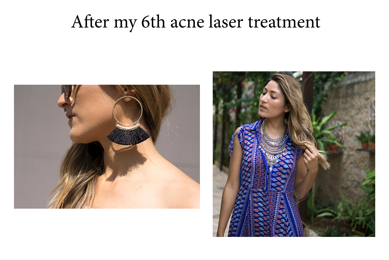 Acne Laser Treatments with AE Skin, AE Skin, Acne, laser, treatments, facial, skin, beauty, merlon beauty, beauty blogger, blogger, la blogger, trending, skin care